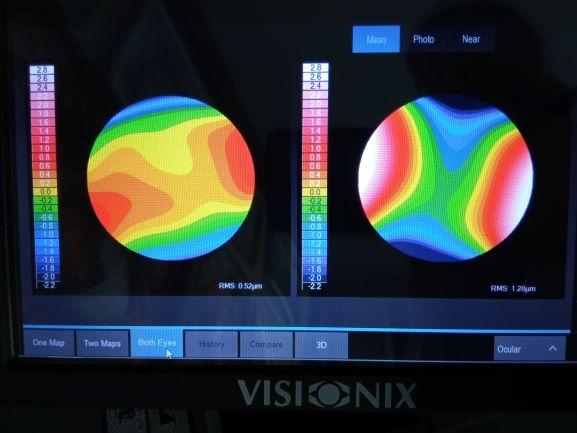 Harta disponere dioptrii pe suprafata oculara